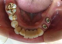 コーヌス義歯 術前